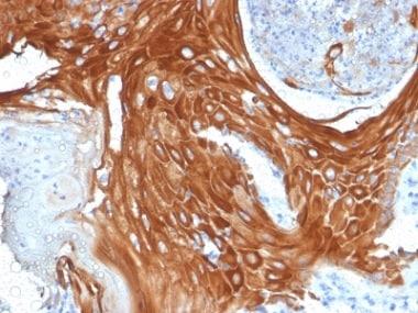Immunohistochemistry (Formalin/PFA-fixed paraffin-embedded sections) - Anti-Cytokeratin 6a antibody [KRT6A/2368] (ab238013)