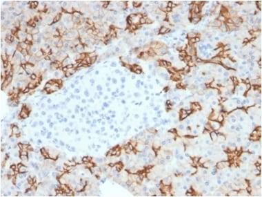 Immunohistochemistry (Formalin/PFA-fixed paraffin-embedded sections) - Anti-TROP2 antibody [TACSTD2/2153] (ab238017)