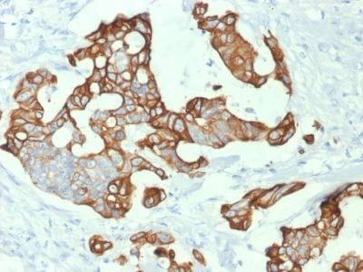 Immunohistochemistry (Formalin/PFA-fixed paraffin-embedded sections) - Anti-Cytokeratin 20 antibody [KRT20/1992] (ab238034)