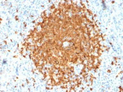 Immunohistochemistry (Formalin/PFA-fixed paraffin-embedded sections) - Anti-BOB1 antibody [BOB1/2424] (ab238035)