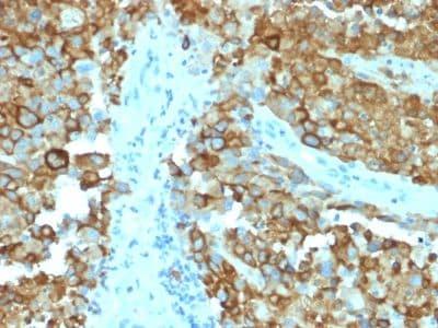 Immunohistochemistry (Formalin/PFA-fixed paraffin-embedded sections) - Anti-Melanoma gp100 antibody [PMEL/2038] (ab238048)