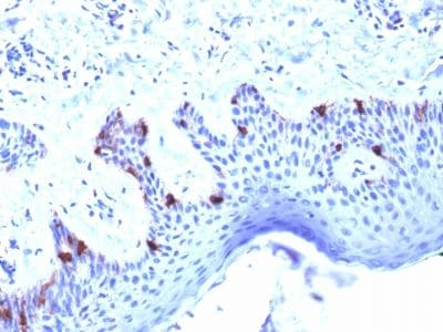 Immunohistochemistry (Formalin/PFA-fixed paraffin-embedded sections) - Anti-Melanoma gp100 antibody [PMEL/2039] (ab238049)