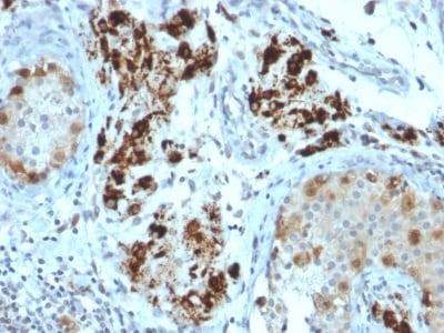 Immunohistochemistry (Formalin/PFA-fixed paraffin-embedded sections) - Anti-StAR antibody [STAR/2154] (ab238057)