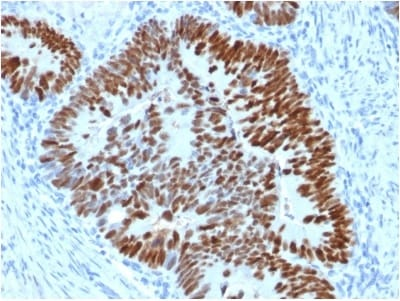 Immunohistochemistry (Formalin/PFA-fixed paraffin-embedded sections) - Anti-p53 antibody [PCRP-TP53-2A10] (ab238066)