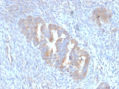 Immunohistochemistry (Formalin/PFA-fixed paraffin-embedded sections) - Anti-APG5L/ATG5 antibody [ATG5/2101] (ab238092)