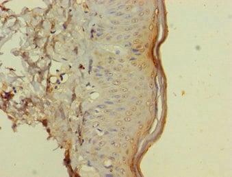 Immunohistochemistry (Formalin/PFA-fixed paraffin-embedded sections) - Anti-CD116 antibody (ab238104)