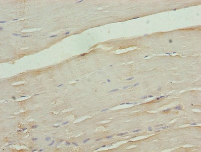 Immunohistochemistry (Formalin/PFA-fixed paraffin-embedded sections) - Anti-Calcium channel L type DHPR alpha 2 subunit/CACNA2D1 antibody (ab238110)