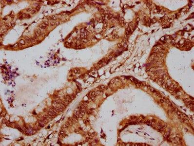 Immunohistochemistry (Formalin/PFA-fixed paraffin-embedded sections) - Anti-FOXA3 antibody (ab238112)