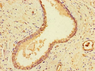 Immunohistochemistry (Formalin/PFA-fixed paraffin-embedded sections) - Anti-DSTN antibody (ab238115)