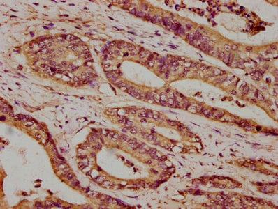 Immunohistochemistry (Formalin/PFA-fixed paraffin-embedded sections) - Anti-Calcium Pump PMCA4 ATPase antibody (ab238158)