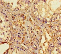 Immunohistochemistry (Formalin/PFA-fixed paraffin-embedded sections) - Anti-RNase L antibody (ab238159)