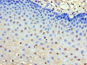 Immunohistochemistry (Formalin/PFA-fixed paraffin-embedded sections) - Anti-GRB7 antibody (ab238165)