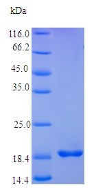 SDS-PAGE - Recombinant human FGF4 protein (Active) (ab238224)
