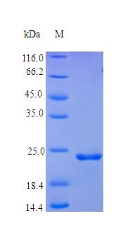 SDS-PAGE - Recombinant human FGF9/GAF protein (Active) (ab238237)