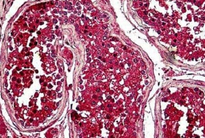 Immunohistochemistry (Formalin/PFA-fixed paraffin-embedded sections) - Anti-Securin antibody (ab238247)
