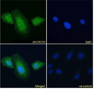 Immunocytochemistry/ Immunofluorescence - Anti-Myosin Phosphatase antibody (ab238250)