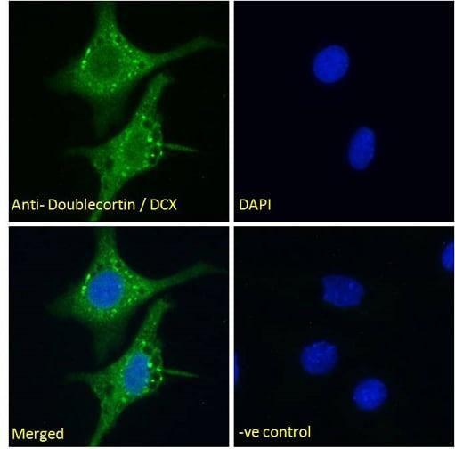 Immunocytochemistry/ Immunofluorescence - Anti-Doublecortin antibody (ab238253)