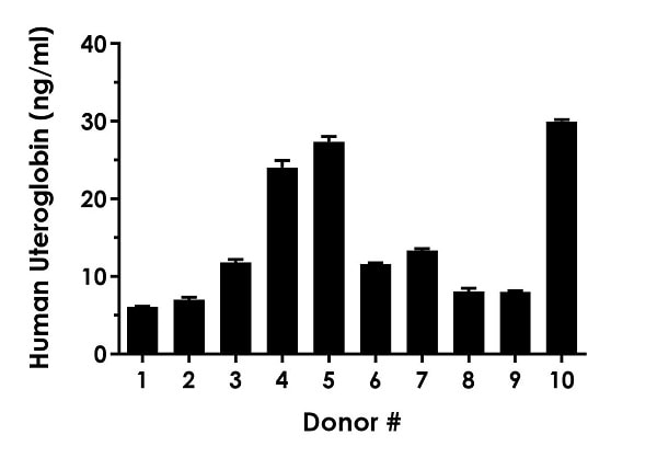Serum from ten individual healthy human female donors was measured in duplicate.