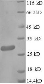SDS-PAGE - Recombinant Beta Lactamase protein (Tagged) (ab238278)