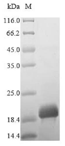 SDS-PAGE - Recombinant Mite group 2 allergen Tyr p 2 protein (His tag) (ab238287)