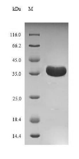SDS-PAGE - Recombinant Outer capsid glycoprotein VP7 (Tagged) (ab238289)