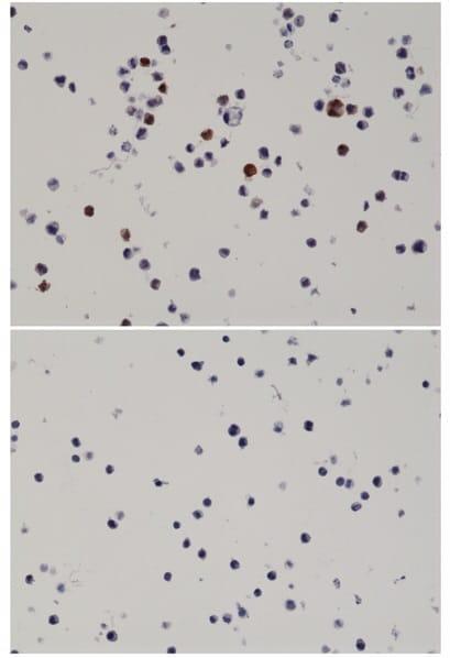 Immunohistochemistry (Formalin/PFA-fixed paraffin-embedded sections) - Anti-AKT1 antibody [RM336] (ab238304)