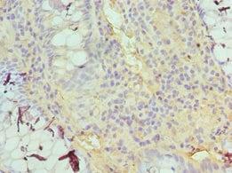 Immunohistochemistry (Formalin/PFA-fixed paraffin-embedded sections) - Anti-TDG antibody (ab238330)