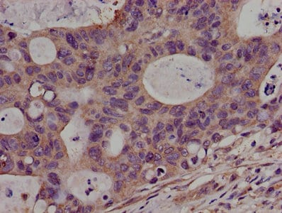 Immunohistochemistry (Formalin/PFA-fixed paraffin-embedded sections) - Anti-PKN2 antibody (ab238334)
