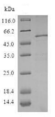 SDS-PAGE - Recombinant Human ZWINT protein (Tagged) (ab238344)