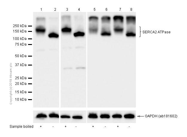 Western blot - Anti-SERCA2 ATPase antibody [EPR9392] - BSA and Azide free (ab238426)