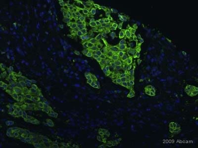 Immunocytochemistry/ Immunofluorescence - Anti-PRC1 antibody [EP1513Y] - BSA and Azide free (ab238427)