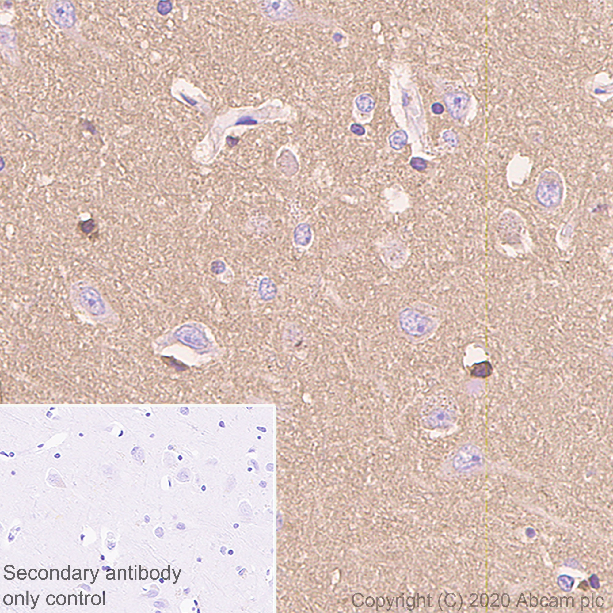 Immunohistochemistry (Formalin/PFA-fixed paraffin-embedded sections) - Anti-Prion protein PrP antibody [EP1802Y] - BSA and Azide free (ab238428)