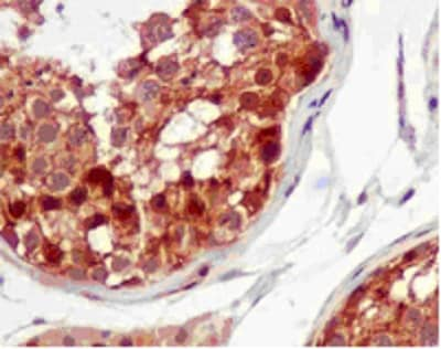 Immunohistochemistry (Formalin/PFA-fixed paraffin-embedded sections) - Anti-Rel B antibody [EPR7076] - BSA and Azide free (ab238434)