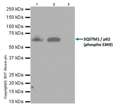 Immunoprecipitation - Anti-SQSTM1 / p62 (phospho S349) antibody [EPR20451] - BSA and Azide free (ab238445)