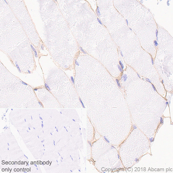 Immunohistochemistry (Formalin/PFA-fixed paraffin-embedded sections) - Anti-Laminin 2 alpha antibody [EPR21890] - BSA and Azide free (ab238458)