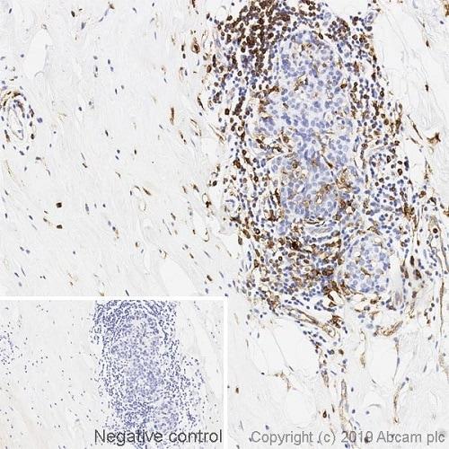 Immunohistochemistry (Formalin/PFA-fixed paraffin-embedded sections) - Anti-HLA-DR antibody [DA6.147] (ab238469)