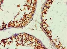 Immunohistochemistry (Formalin/PFA-fixed paraffin-embedded sections) - Anti-ALDH1B1 antibody (ab238482)
