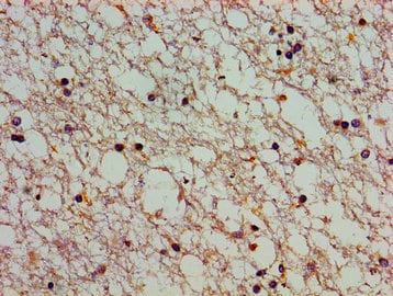 Immunohistochemistry (Formalin/PFA-fixed paraffin-embedded sections) - Anti-ATP2C1 antibody (ab238487)