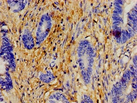 Immunohistochemistry (Formalin/PFA-fixed paraffin-embedded sections) - Anti-H-ERA antibody (ab238496)