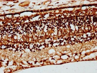 Immunohistochemistry (Formalin/PFA-fixed paraffin-embedded sections) - Anti-CRB1 antibody (ab238501)