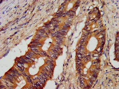 Immunohistochemistry (Formalin/PFA-fixed paraffin-embedded sections) - Anti-JP-1 antibody (ab238503)