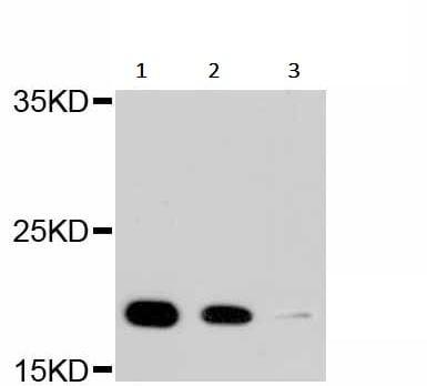 Western blot - Anti-Cyclophilin B antibody [C2D4] (ab238511)