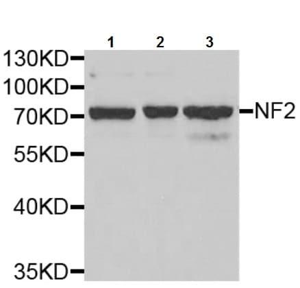 Western blot - Anti-NF2 / Merlin antibody (ab238520)