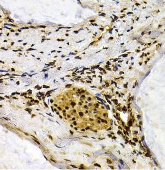 Immunohistochemistry (Formalin/PFA-fixed paraffin-embedded sections) - Anti-MDA5 antibody (ab238526)
