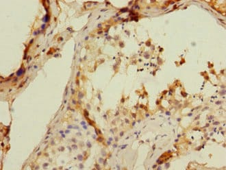 Immunohistochemistry (Formalin/PFA-fixed paraffin-embedded sections) - Anti-CD8B antibody (ab238549)