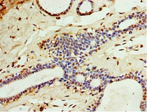 Immunohistochemistry (Formalin/PFA-fixed paraffin-embedded sections) - Anti-Carbonic Anhydrase 8/CA8 antibody (ab238557)
