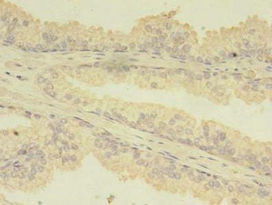 Immunohistochemistry (Formalin/PFA-fixed paraffin-embedded sections) - Anti-CFA antibody (ab238558)