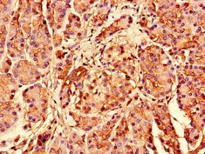 Immunohistochemistry (Formalin/PFA-fixed paraffin-embedded sections) - Anti-RPS26 antibody (ab238559)