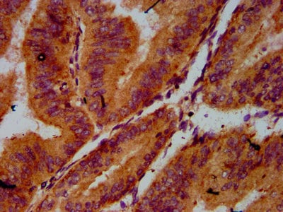 Immunohistochemistry (Formalin/PFA-fixed paraffin-embedded sections) - Anti-CDC123 antibody (ab238560)