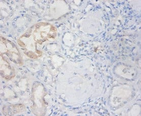 Immunohistochemistry (Formalin/PFA-fixed paraffin-embedded sections) - Anti-Eosinophil derived neurotoxin antibody (ab238562)